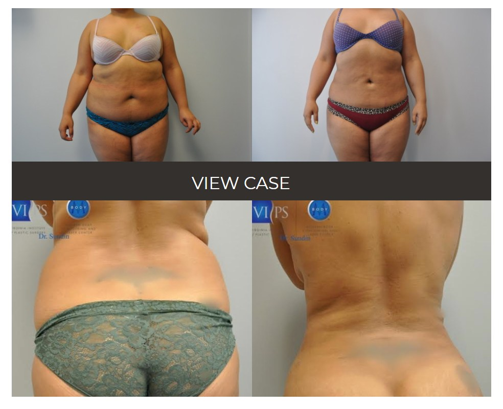 Liposuction before after photos washinton DC 1 - Liposuction