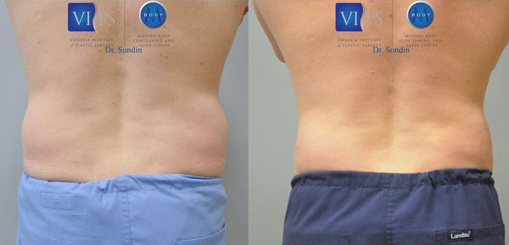little lipo before and after photos - Little Liposuction